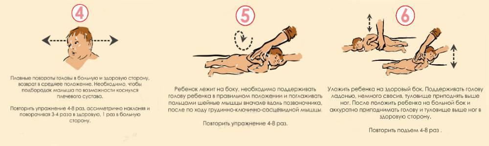 Кривошея у новорожденных: можно ли вылечить ее в домашних условиях