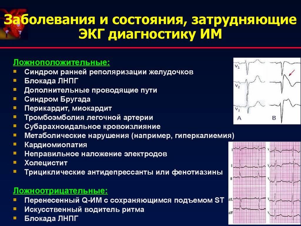 Что показывает экг сердца (кардиограмма)