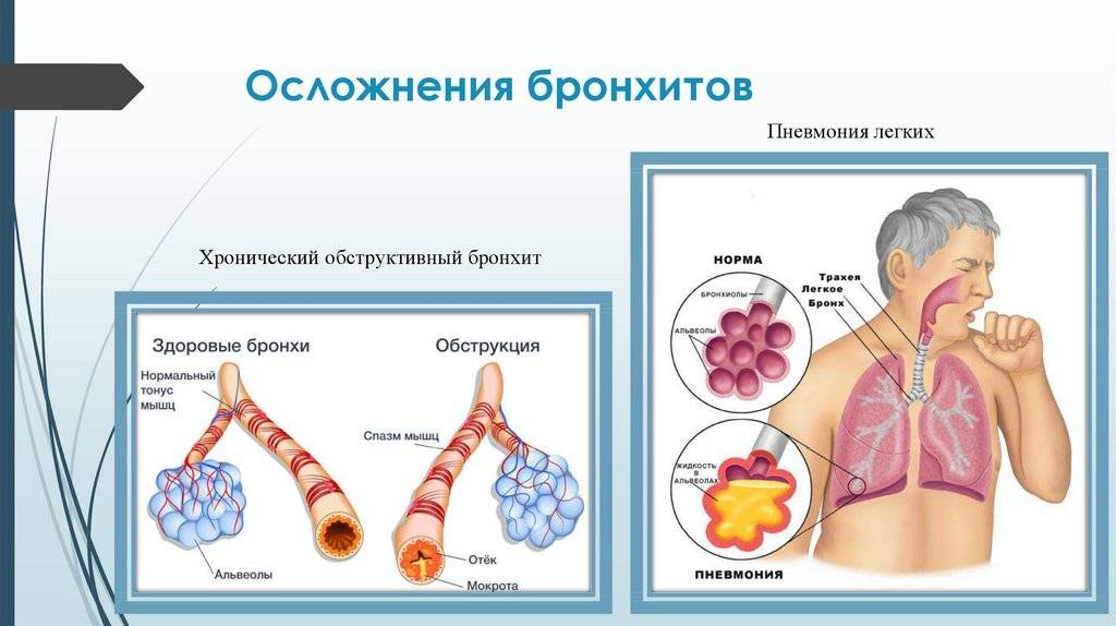 Обструктивный бронхит: лечение народными средствами | eurolab | пульмонология