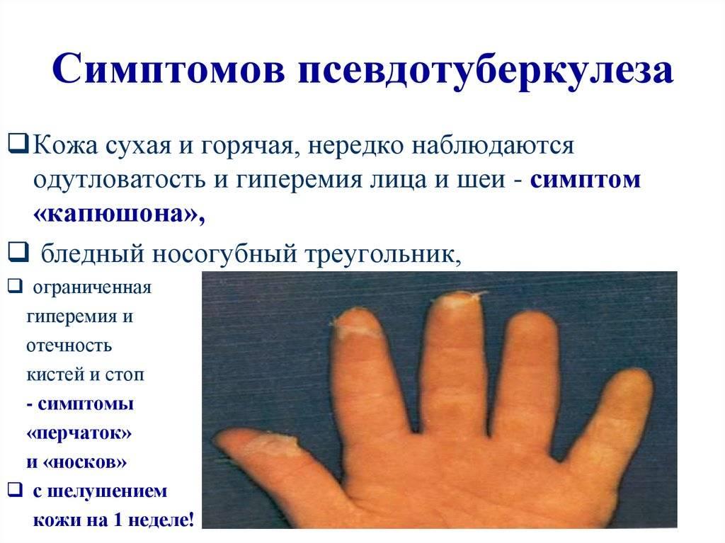 Лечение псевдотуберкулеза - медицинский портал eurolab