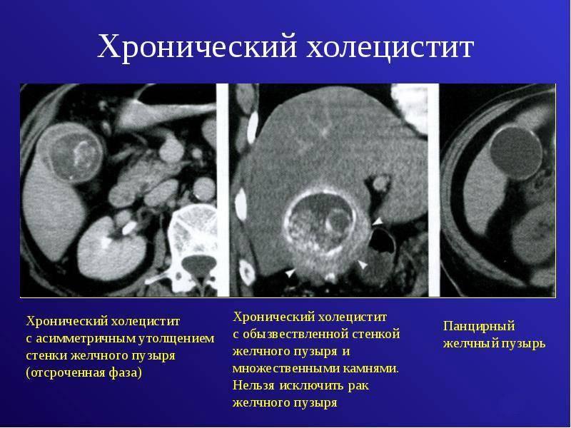 Хронический холецистит                (хроническое заболевание желчного пузыря)