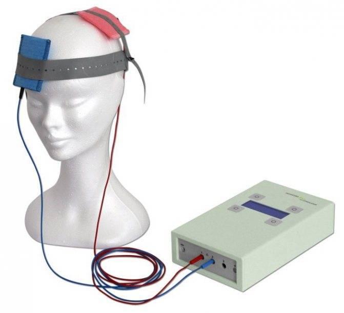 Трансцеребральная электротерапия при болях   семейный доктор