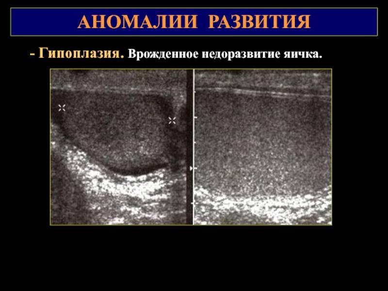 Сперматоцеле (киста яичка), симптомы и последствия. удаление кисты яичка.