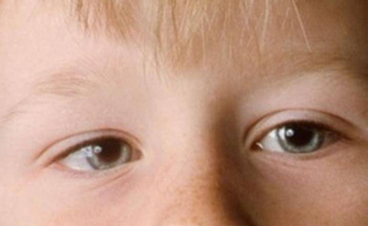 У ребенка косоглазие. 5 вопросов к офтальмологу