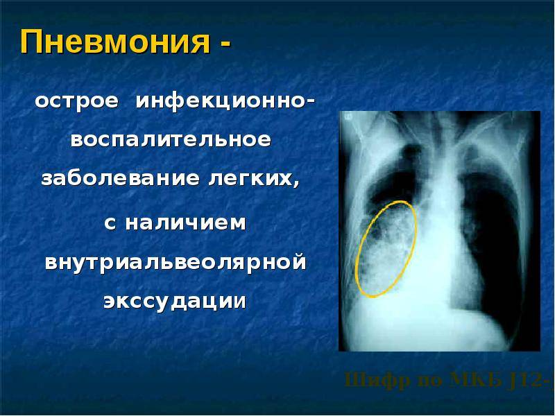 Все о вирусной пневмонии у детей