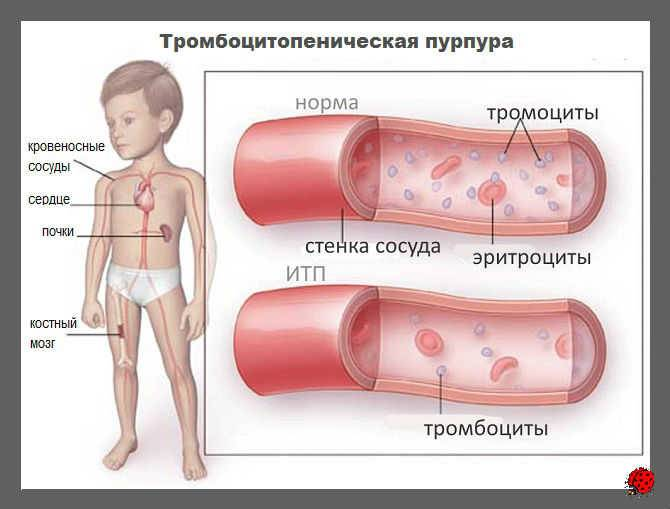 Экспертная диагностика и лечение тромбоцитопенической пурпуры