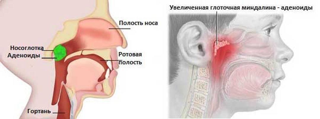Постназальный синдром. диагностика и лечение в москве!