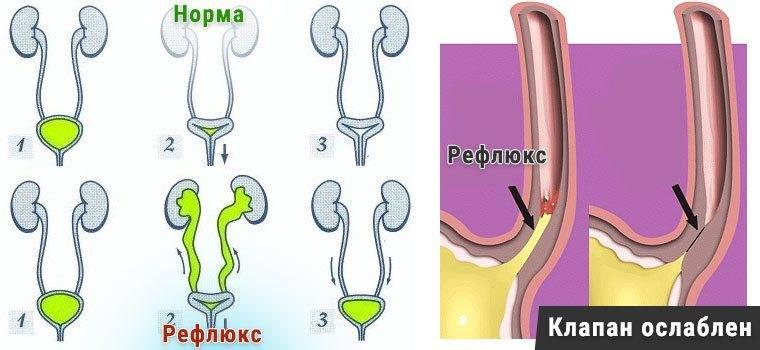 Пузырно-мочеточниковый рефлюкс. причины, симптоматика, диагностика и лечение пузырно-мочеточникового рефлюкса