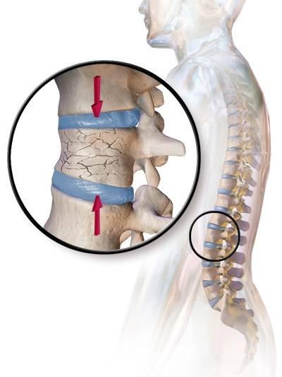 Перелом позвоночника: симптомы, последствия, лечение | медицинский дом odrex