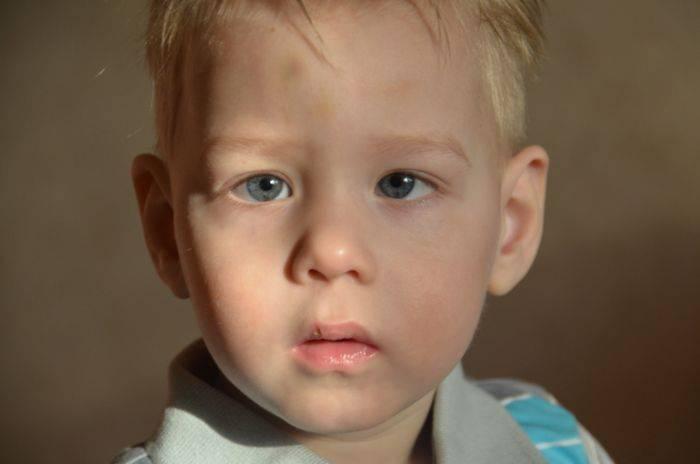 Сходящееся содружественное косоглазие у детей: как распознать и лечить