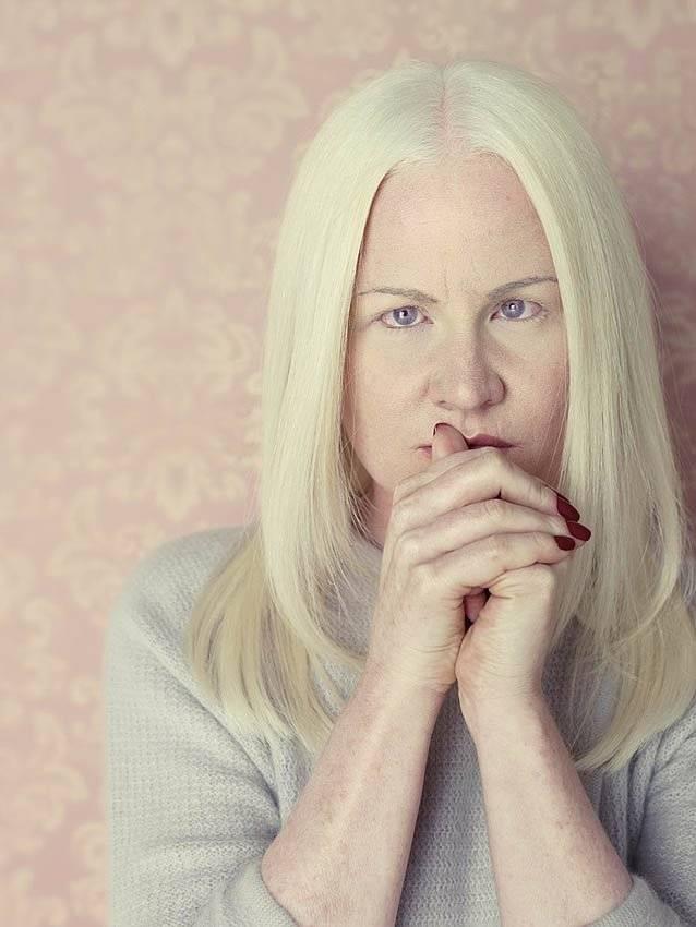 Глазной альбинизм