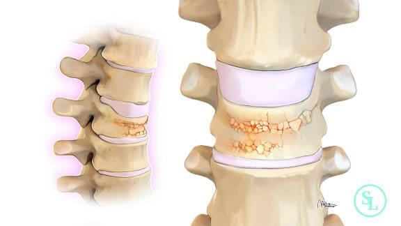 Компрессионный перелом грудных позвонков и боль в спине