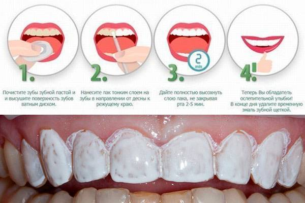 Покрытие зубов у детей, методы -  серебрение, фторирование молочных зубов - стоматология березка, цены в балашихе