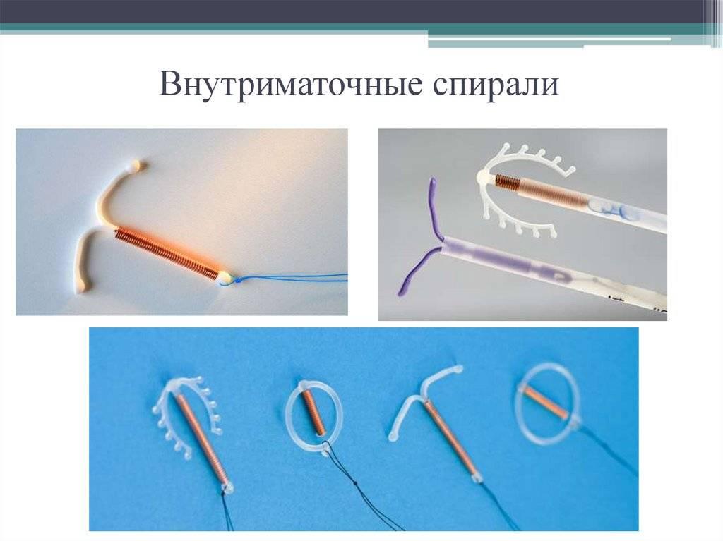 Спираль после родов — можно ли ставить и когда. положительные и отрицательные стороны применения спирали после родов