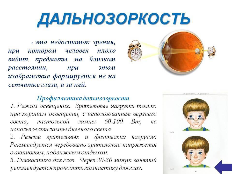 Сильная близорукость у ребенка - энциклопедия ochkov.net