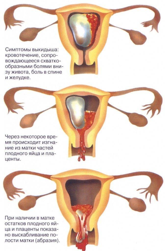 Самопроизвольный аборт: как жить дальше?