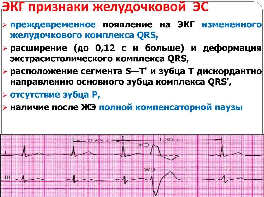 10 показателей. расшифровываем электрокардиограмму (экг)