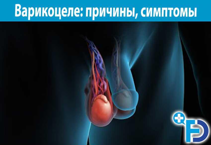 Варикоцеле — большая медицинская энциклопедия