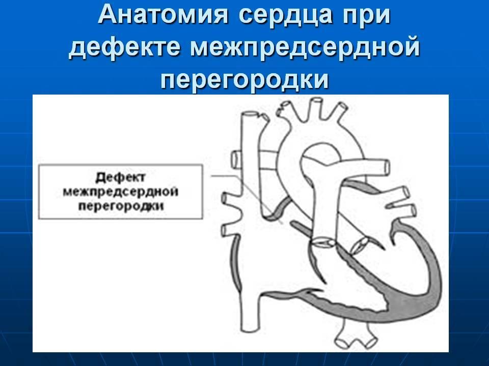Дефект межпредсердной перегородки: симптомы, лечение, осложнения — онлайн-диагностика
