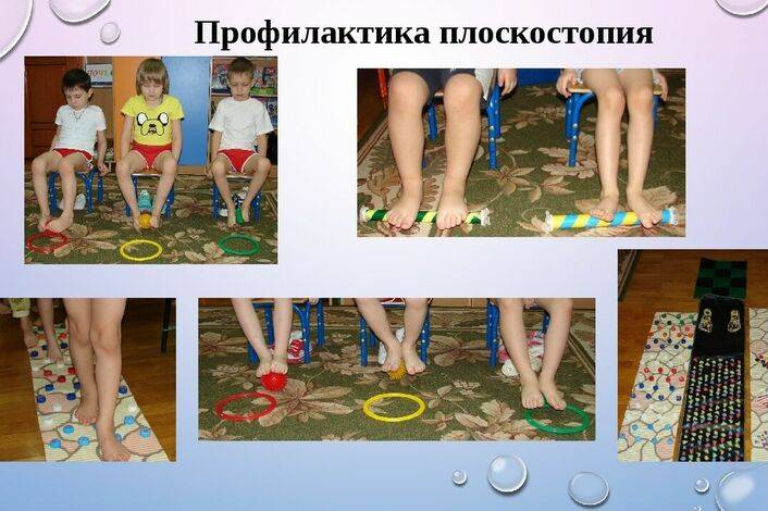 Профилактика плоскостопия у детей в доо — физинструктор.ру