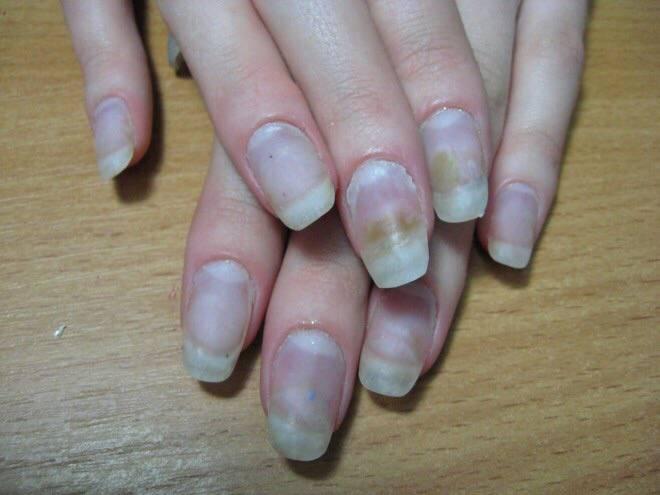 Уход за ногтями во время беременности. что можно, а что нельзя?