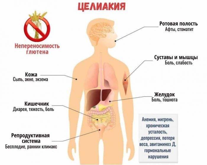 Целиакия (глютеновая энтеропатия)