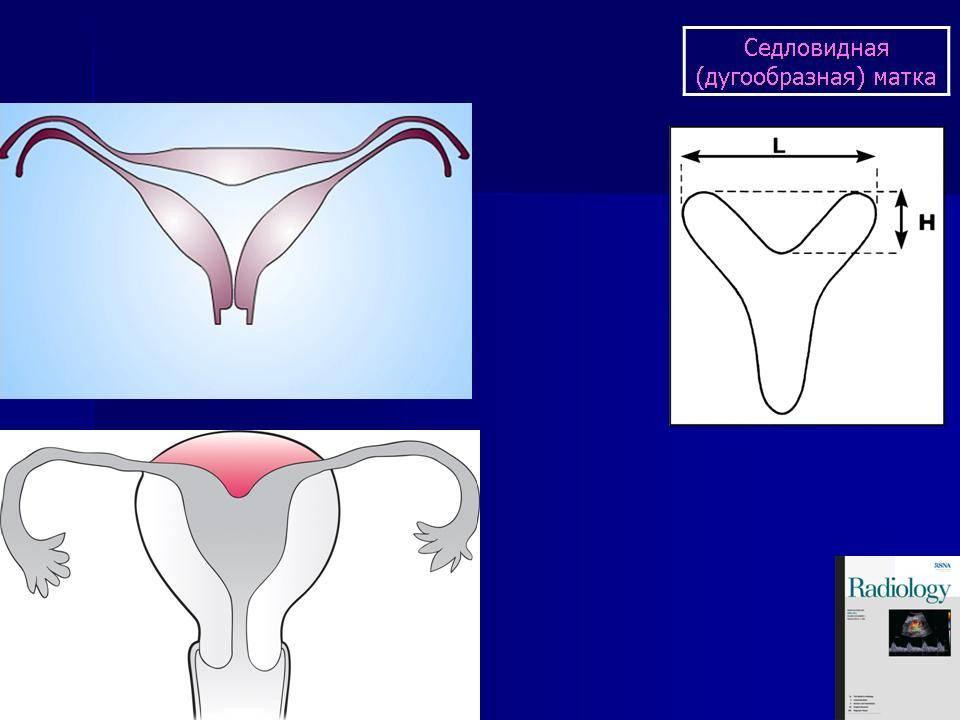 Доброкачественные заболевания шейки матки!