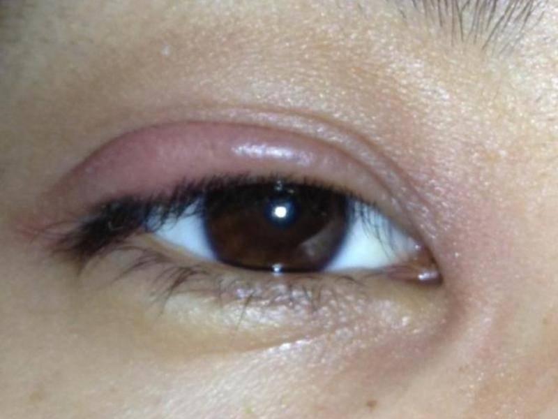 Герпес на глазу - фото, комплексная терапия и эффективная профилактика