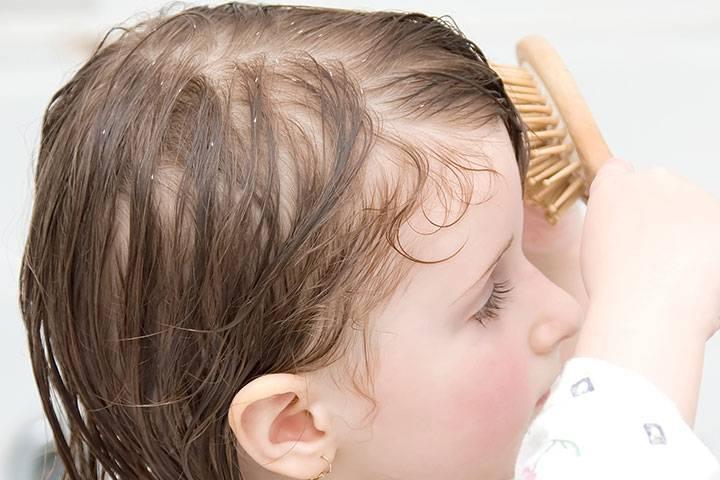 Сухая кожа головы - что делать, если появилась перхоть, зуд и сухость: правила ухода и обзор 10 средств
