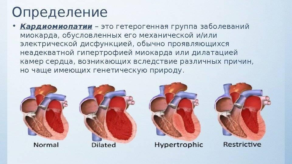 Постгипоксическая кардиопатия у новорожденных