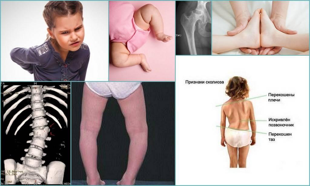 Дисплазия тазобедренного сустава у детей | медицинский дом odrex