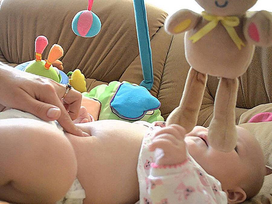 Пупочная грыжа у детей, как обойтись без операции?