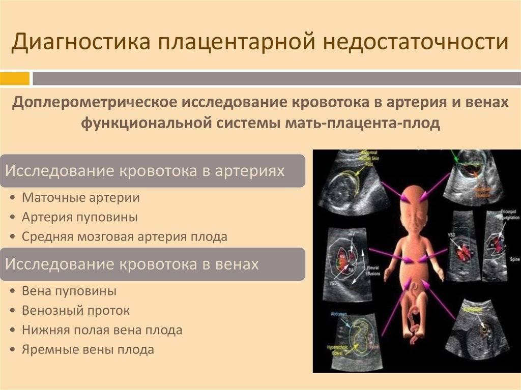 Гестоз при беременности: симптомы, лечение и рекомендации специалиста