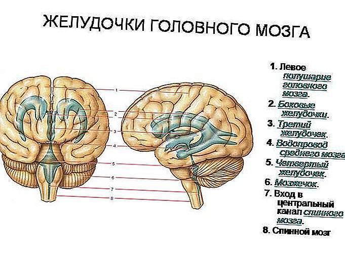 Опухоли 3 желудочка | нейродети