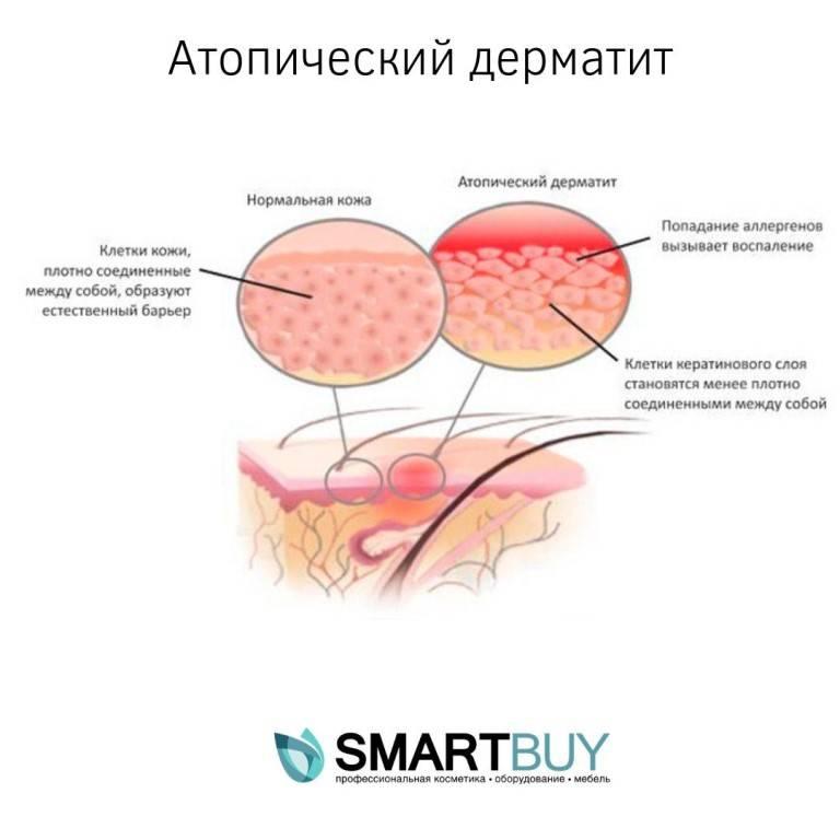 Аллергический стоматит и его лечение | симптомы, причины и профилактика аллергического стоматита