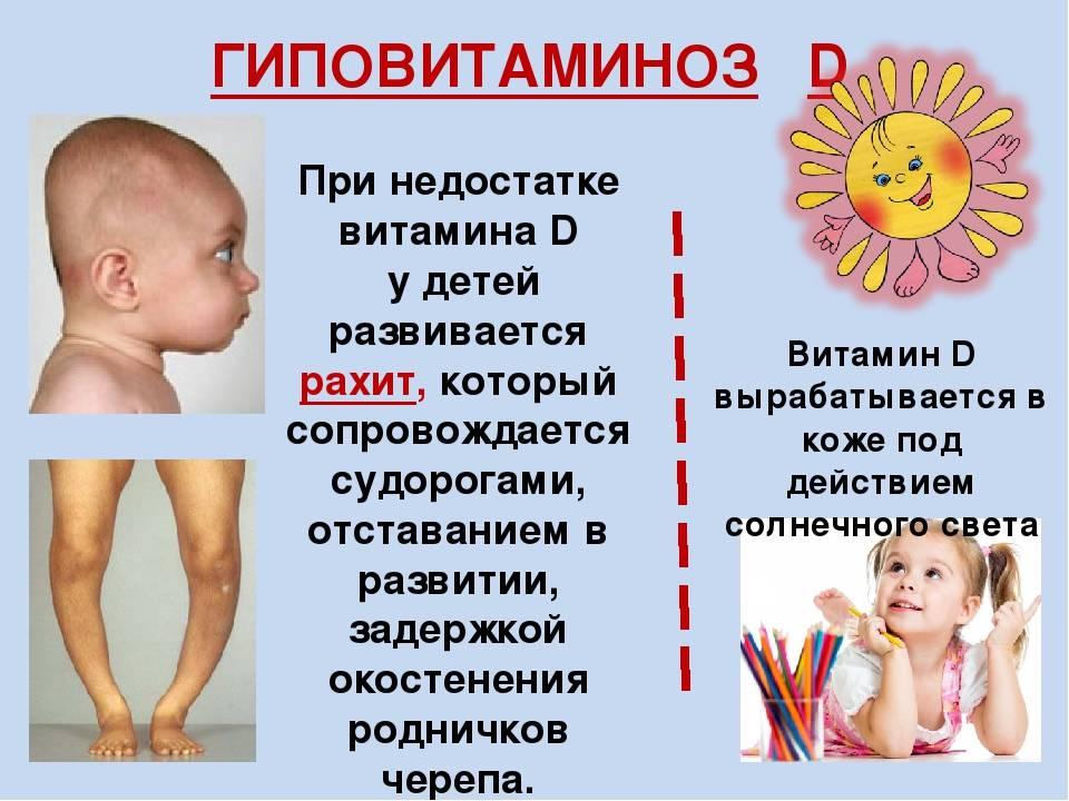 Предупредить рахит у детей просто: правильная диета и режим