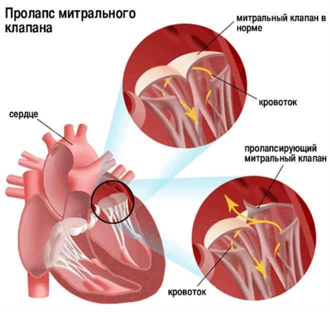Пролабирование сердечных клапанов – норма или патология? Разбираемся с детским кардиологом