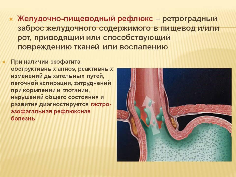 Гастроэзофагеальная рефлюксная болезнь (гэрб) у детей