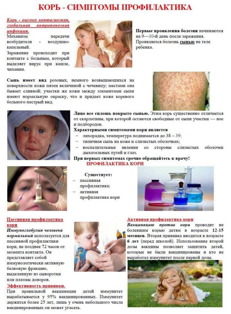 Корь у детей и взрослых - симптомы, последствия, профилактика