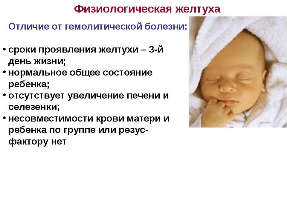 Желтуха у новорожденного – о симптомах, диагностике, лечении рассказывает педиатр-неонатолог клиники  isida