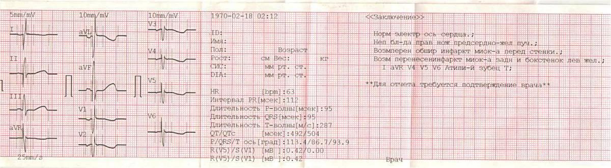 Велоэргометрия (вэм). проведение сердечного диагностического теста.