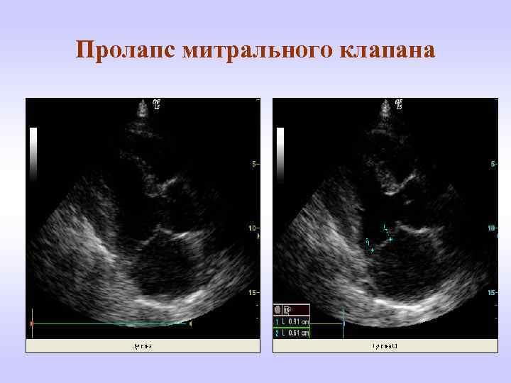 Пролапс митрального клапана: симптомы, диагностика, особенности лечения