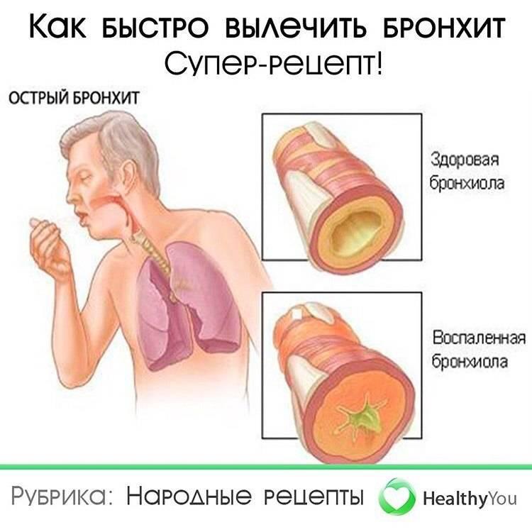 Симптомы бронхита у грудных детей (лечение)
