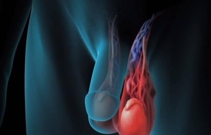 Варикоцеле: обратимая причина бесплодия