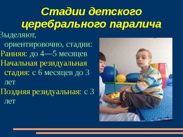 Детский церебральный паралич (дцп) - лечение, симптомы, причины, диагностика   центр дикуля