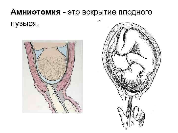 Пункция плевральной полости
