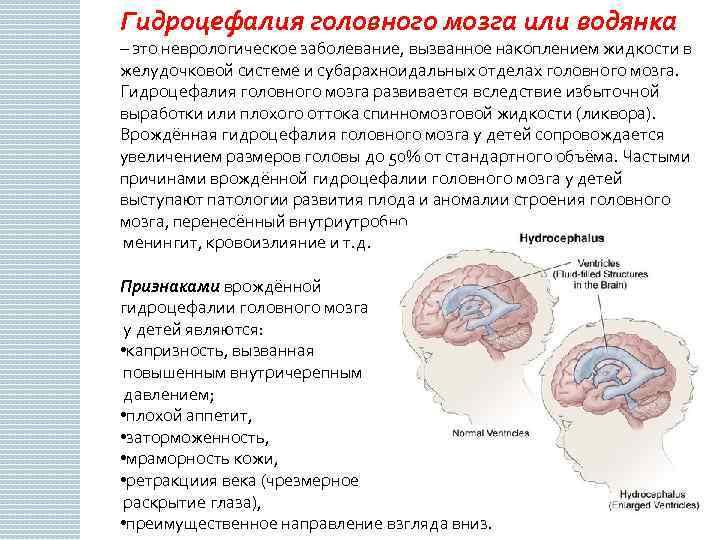 Цереброваскулярная патология