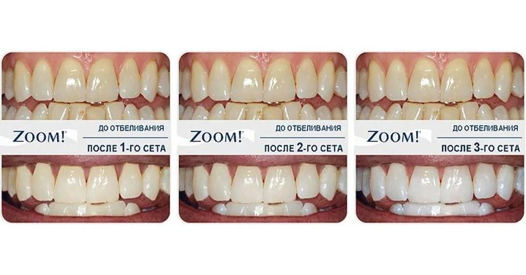 Покрытие зубной эмали гелем