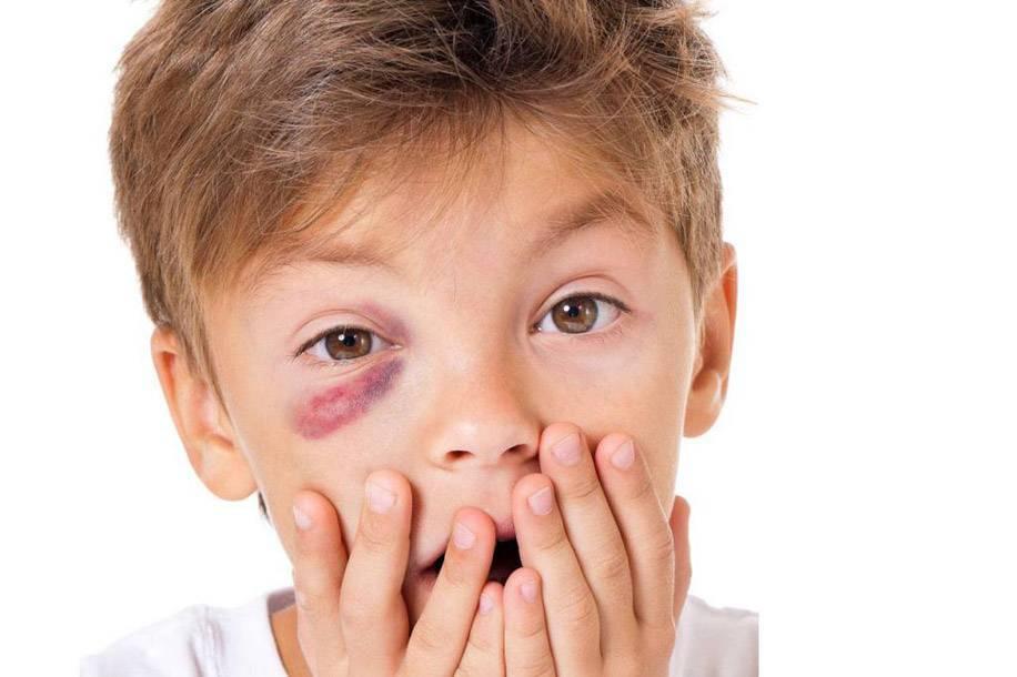 Резь в глазах при синдроме сухого глаза и попадании инородного тела. ощущение песка в глазах