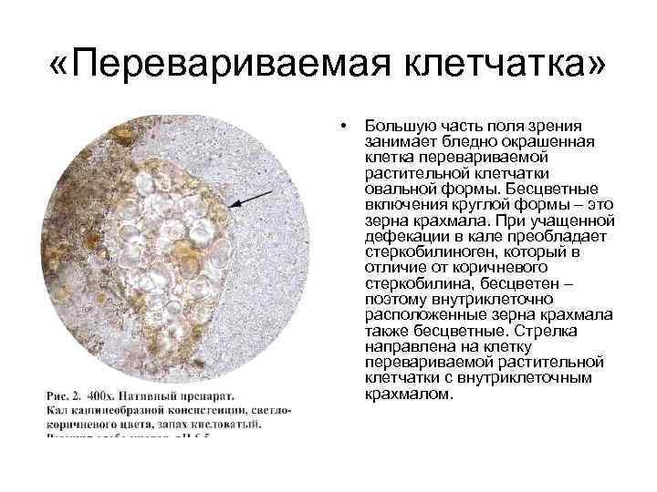 Йодофильная флора в кале: что это значит и способы ее устранения